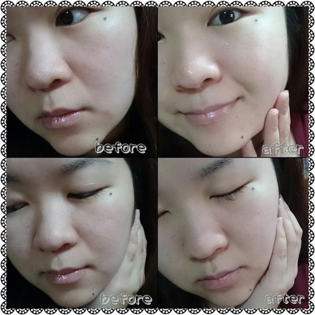 ㄚ泰 - [我的美丽日记] 黑珍珠焕白面膜-水润好肌肤