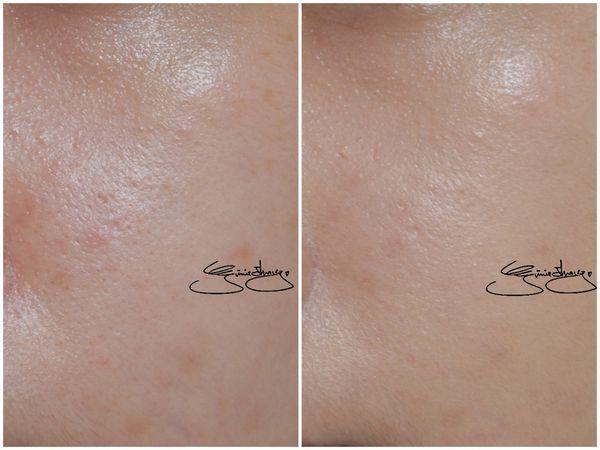 蘭蔻 超極光精華水粉底 毛孔修飾 比較.jpg